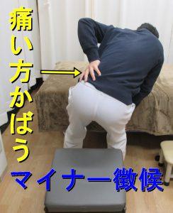 腰の痛い方をかばうマイナー徴候