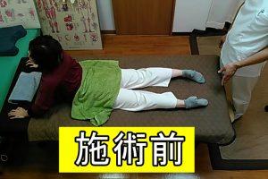 施術前の身体反らし