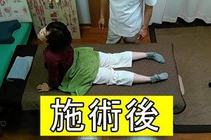 施術後の身体反らし