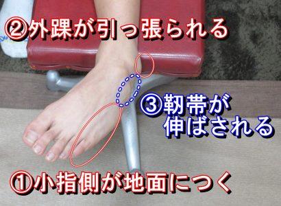 足関節捻挫足首靭帯損傷