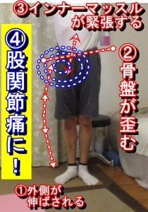 足関節捻挫から股関節痛