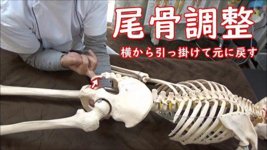 尾骨を横から引っ掛けて戻す調整