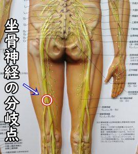 坐骨神経の分岐点