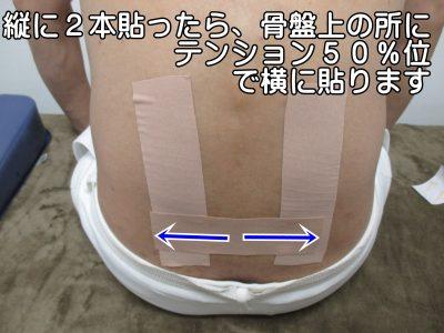 キネシオテープを縦に2本貼ったら、骨盤上の所にテンション50%位で横に貼ります