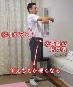 反り腰の原因は太ももの大腿四頭筋硬さ