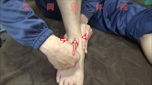 下部脛腓関節の開き締めて圧迫