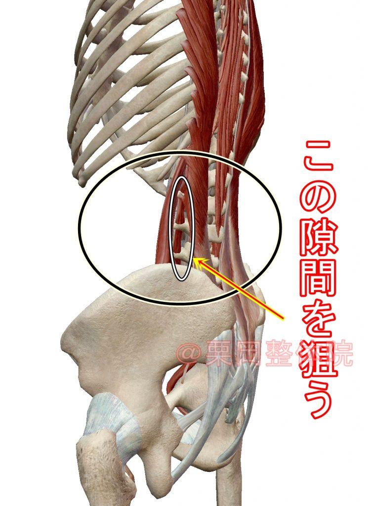 大腰筋と脊柱起立筋の隙間の狙う位置