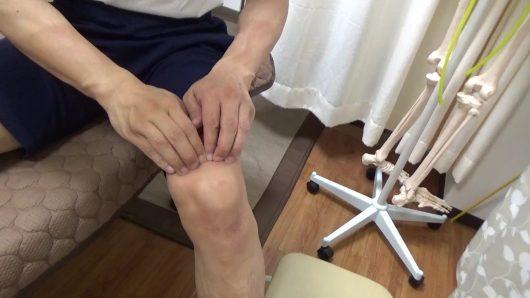 膝蓋骨周囲のはがし四指でしごく