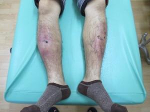 足のスネの打撲腫れ