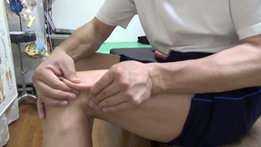 大腿四頭筋つまみ筋膜リリース 外側